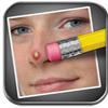 Il Cancella Difetti (Pimple Eraser) per iPad